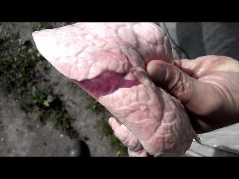 Антитела гепатита у ребенка