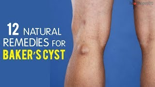12 Natural Remedies For Baker's Cyst | Healthspectra