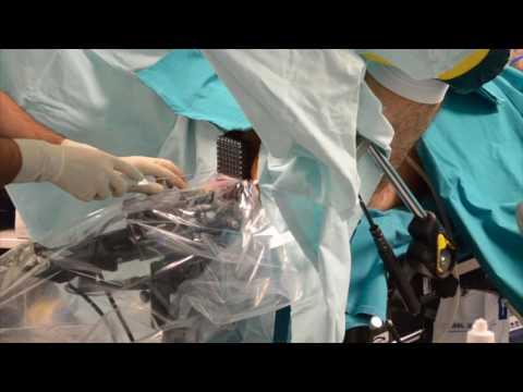 Pflanzliche Behandlung von Prostata-Tumoren
