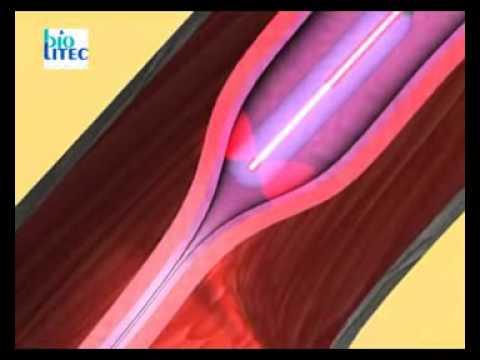 Gomeopatitscheskije die Mittel bei der Thrombophlebitis