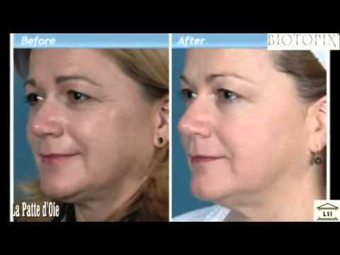 La période de réhabilitation après circulaire les bretelles de la personne et le cou