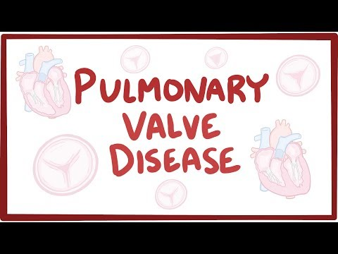 Video Pulmonic valve disease - causes, symptoms, diagnosis, treatment, pathology