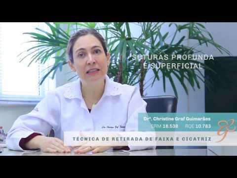 Transplante Capilar Técnica retirada de faixa e Cicatriz - Vídeos   Clínica GrafGuimarães