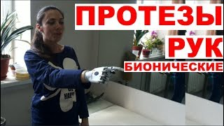 Бионический протез руки - первая примерка Bebionic©