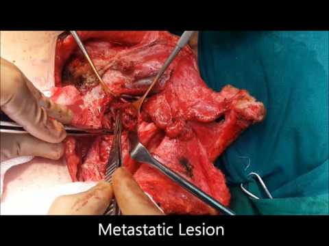 Transclavicular Thoracic Inlet Resection of Metastatic Mass