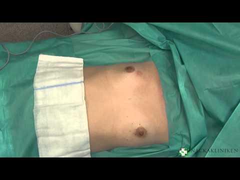 Después de la operación en el pecho fibroadenoma