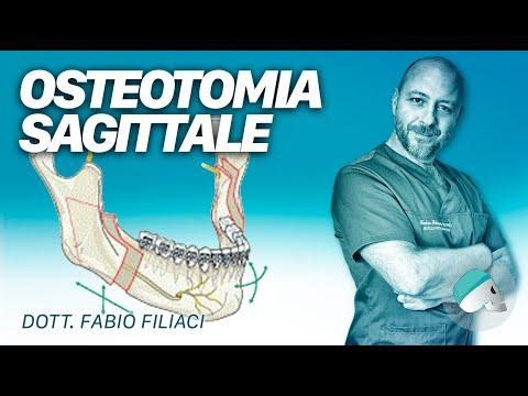 Rottura del legamento crociato anteriore del ginocchio risonanza magnetica articolare