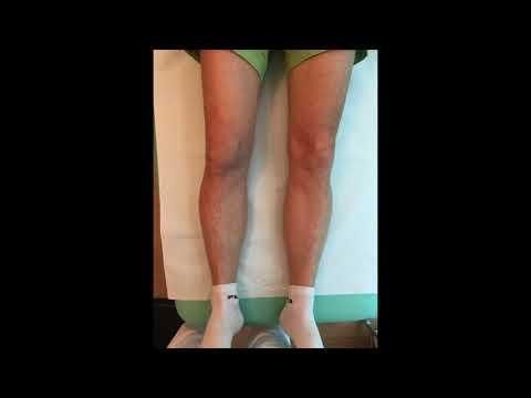 Medicazioni saline sulle articolazioni in osteoartrosi del Neumyvakin