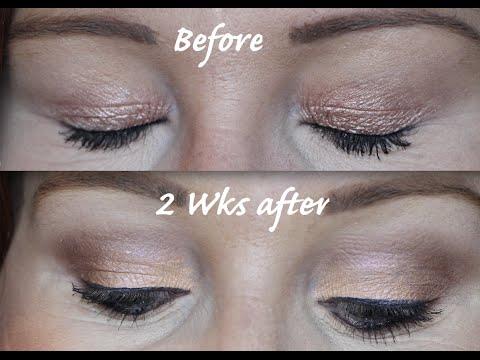 Diary of Plexr Hooded Eye Treatment - Part 2 - Non surgical Blepharoplasty?