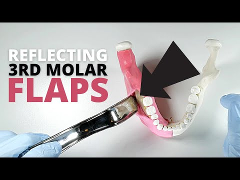 How To Reflect And Retract A Full-Thickness Flap For Third Molar Surgery