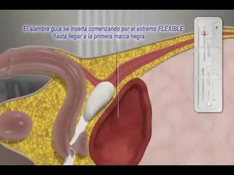 Per il trattamento di tablet prostata