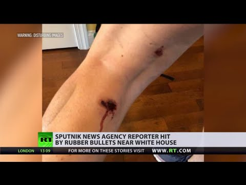 Hard Pressed | Journalists ATTACKED while covering US protests