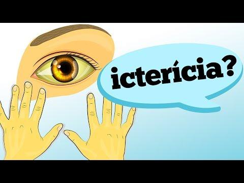 Como o eczema olha