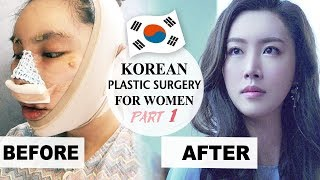 MY PLASTIC SURGERY IN KOREA PART 1 - BEFORE & AFTER - Docfinderkorea 성형 후기 1부 닥파인더코리아