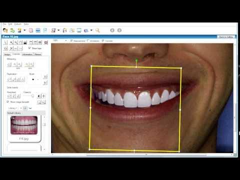 Обучающее видео по использованию стоматологической программы моделирования улыбки с базой анатомически правильных улыбок