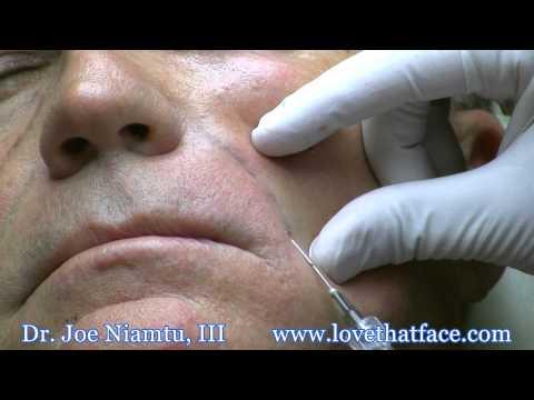 Cosmetic surgery ng eyelids presyo