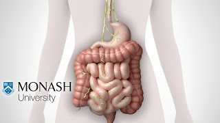 Prikkelbaredarmsyndroom en het FODMAP_dieet