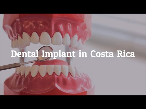 Key Factors to Learn about Dental Implants in Costa Rica