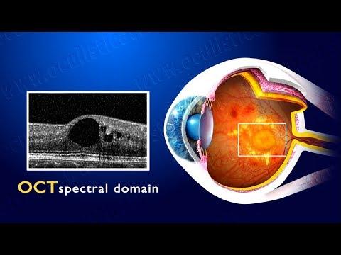 Vene varicose trattamento fisso dal prezzo laser