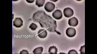 Neutrophil Phagocytosis - White Blood Cell Eats Staphylococcus Aureus Bacteria