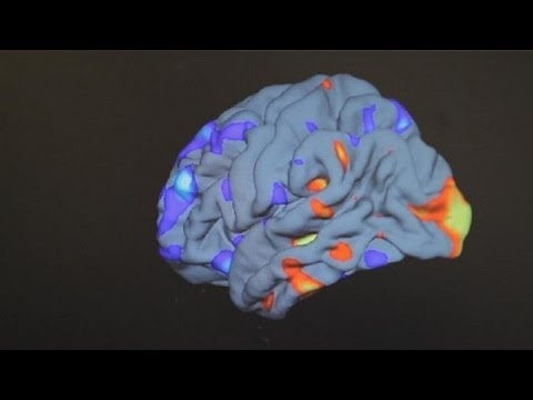 کمک به مبتلایان به اوتیسم با استفاده از علم ژنتیک و تصاویر سه بعدی - science