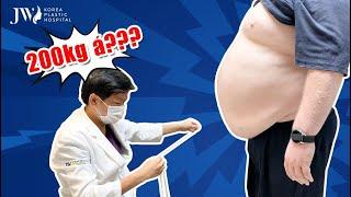 Bác sĩ Tú Dung NGỢP THỞ trước chiếc BỤNG SIÊU TO, SIÊU KHỔNG LỒ 200 KG của ông Tây
