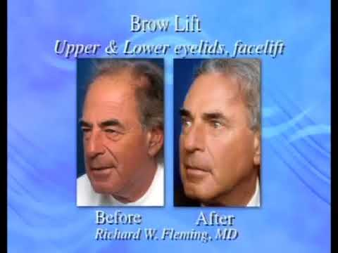 Browlift & Blepharaplasty