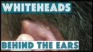 Whiteheads behind the ears, extracted