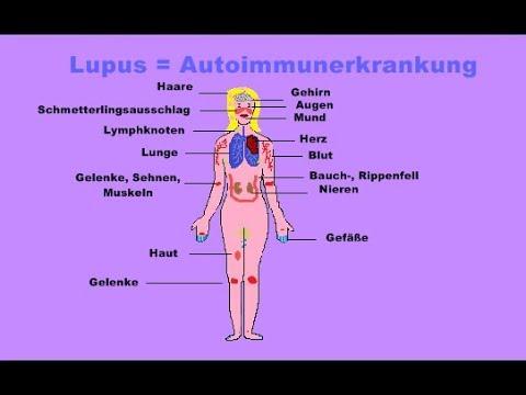 Übelkeit und Schmerzen im Nacken und Schulterblättern