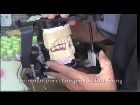 Dental Implant - Bite Registration Posterior
