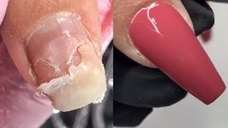 Awesome Acrylic Nail Transformations | The Best Acrylic Nail Art Designs