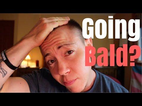 Alpha na may alopecia