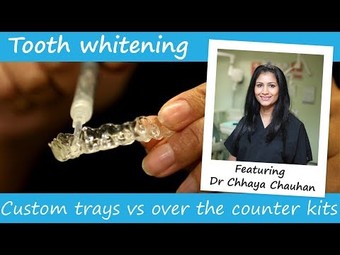 Whitening trays vs over the counter whitening kits
