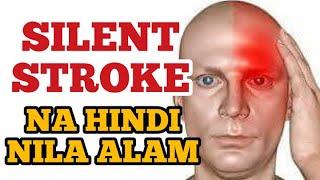 Silent Stroke: Bakit May Stroke Na Hindi Nila Alam  Payo ni Doc Willie Ong #642b  1. May taong na-stroke na halos walang sintomas. 2. Nagbabago lang ang ugali, mas walang balanse, at madaling makalimot. Nakikita ito sa MRI scan. 3. Para maiwasan ang stroke, tigil sigarilyo, bawas alat at mantika, mag-ehersisyo, kumain ng tama.  Panoorin ang Video: https://www.youtube.com/watch?v=LTsStuT7VQs
