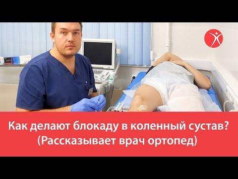 Как делают блокаду в коленный сустав? (Рассказывает врач ортопед)