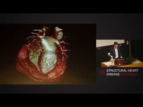 Cardiovascular 3D Printing And Simulation