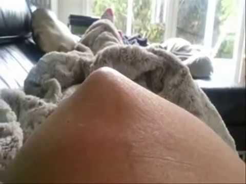 Comme guérir le microorganisme végétal sur les pieds les ongles
