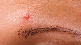 How to Reduce the Swelling and Redness of Pimples