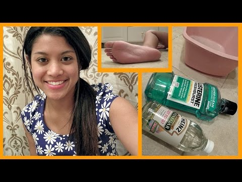 Video DIY Dry Foot Remedy Review