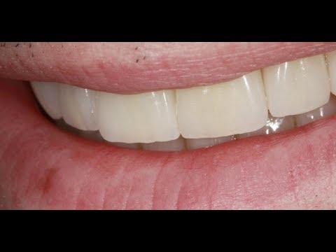 Реставрация сразу всех зубов по новой технологии