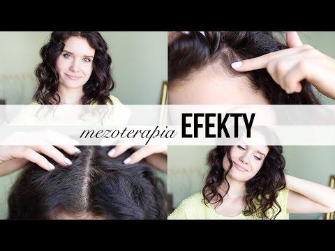 Nowego w leczeniu włosy