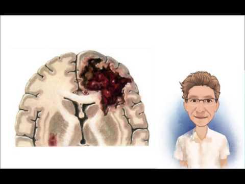 Técnica de masaje con el ensayo hipertensión