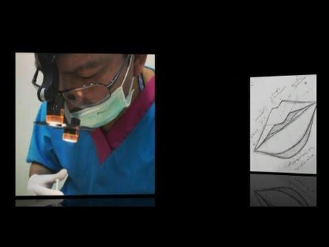 Die Anlage brust- implanta