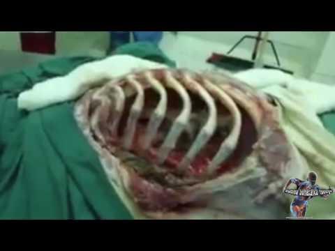 Anche la massa informe in una gola fa male in un dorso