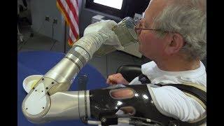 """Los dos primeros pacientes reciben """"el brazo biónico de  Luke Skywalker"""""""