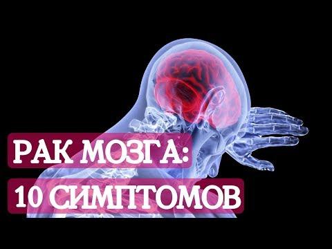 Опухоль головного мозга: 10 симптомов страшной болезни