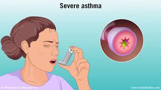 Understanding Asthma: Mild, Moderate, and Severe