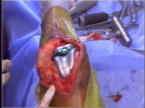 Druck aufgrund der Einklemmung der Halswirbelsäule