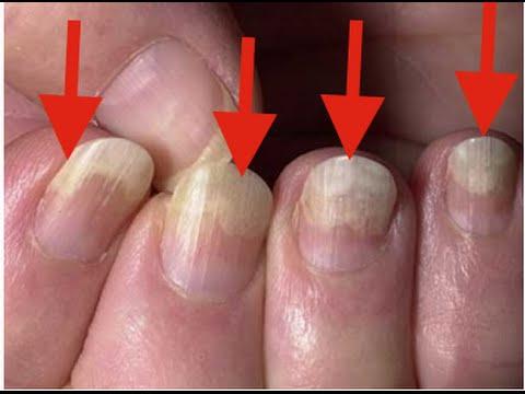 Von welchen Medikamenten man gribok der Nägel behandeln kann