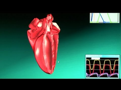 This Complex 3D Heart Simulator Can Run On Just A Laptop
